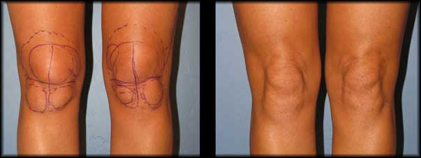 knees-liposuction-before-after
